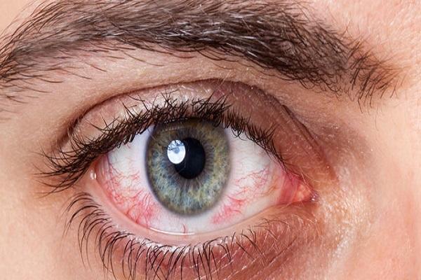 به تعویق انداختن درمان کدام یک از بیماری های چشمی خطرناک است؟