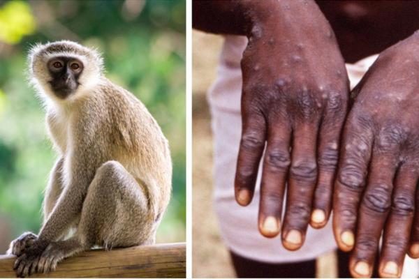 ریشه و علائم آبله میمونی چیست؟